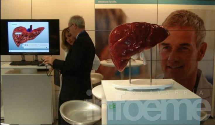 Hay más de 500.000 argentinos que viven con hepatitis