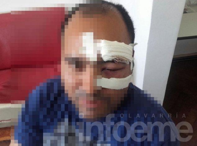 Así quedó el rostro de un policía tras los incidentes en barrio Matadero